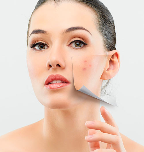 Types of Acne and the Best Skin Treatment Methods
