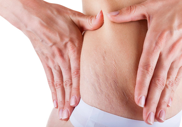 How to Get Rid of Loose Skin after Pregnancy