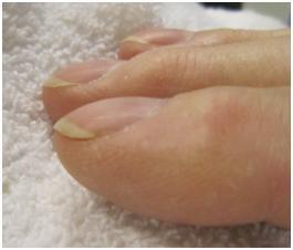 Assessing Fingernails Health 1