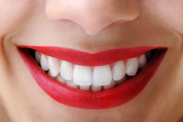 Whitening Treatments for Teeth
