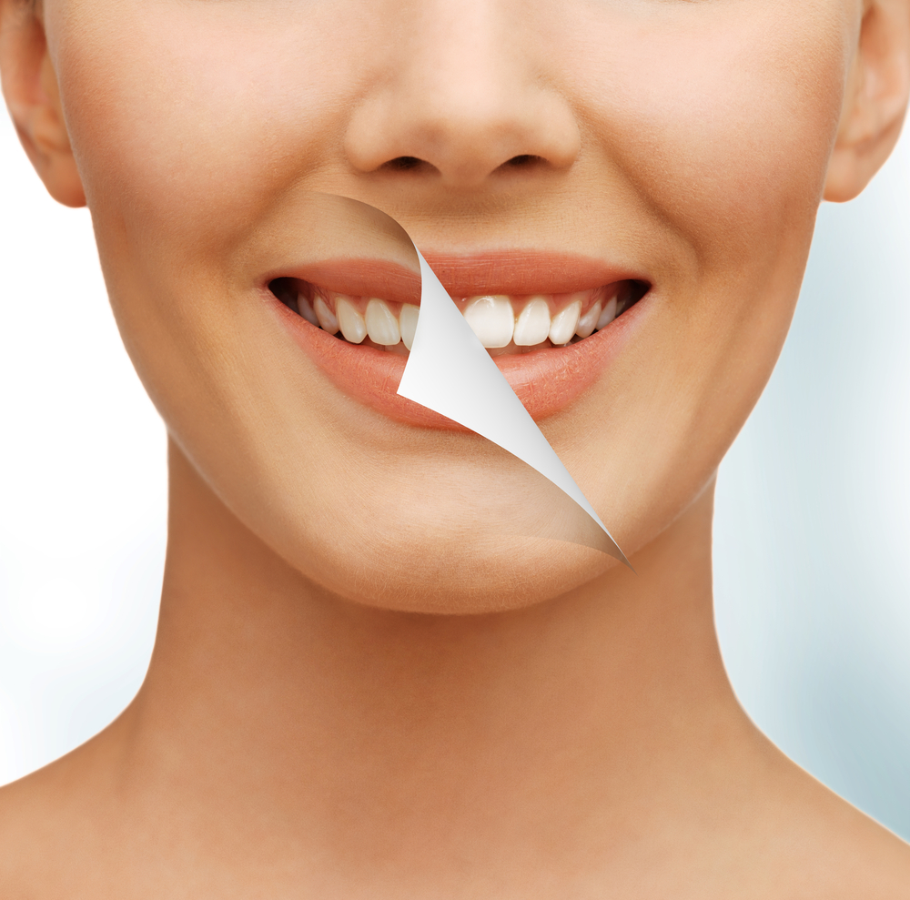 Woman with clear white teeth