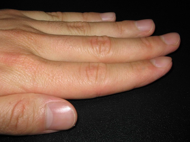 how to keep nails healthy