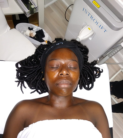 Client undergoing a perfect derma peel at Introlift