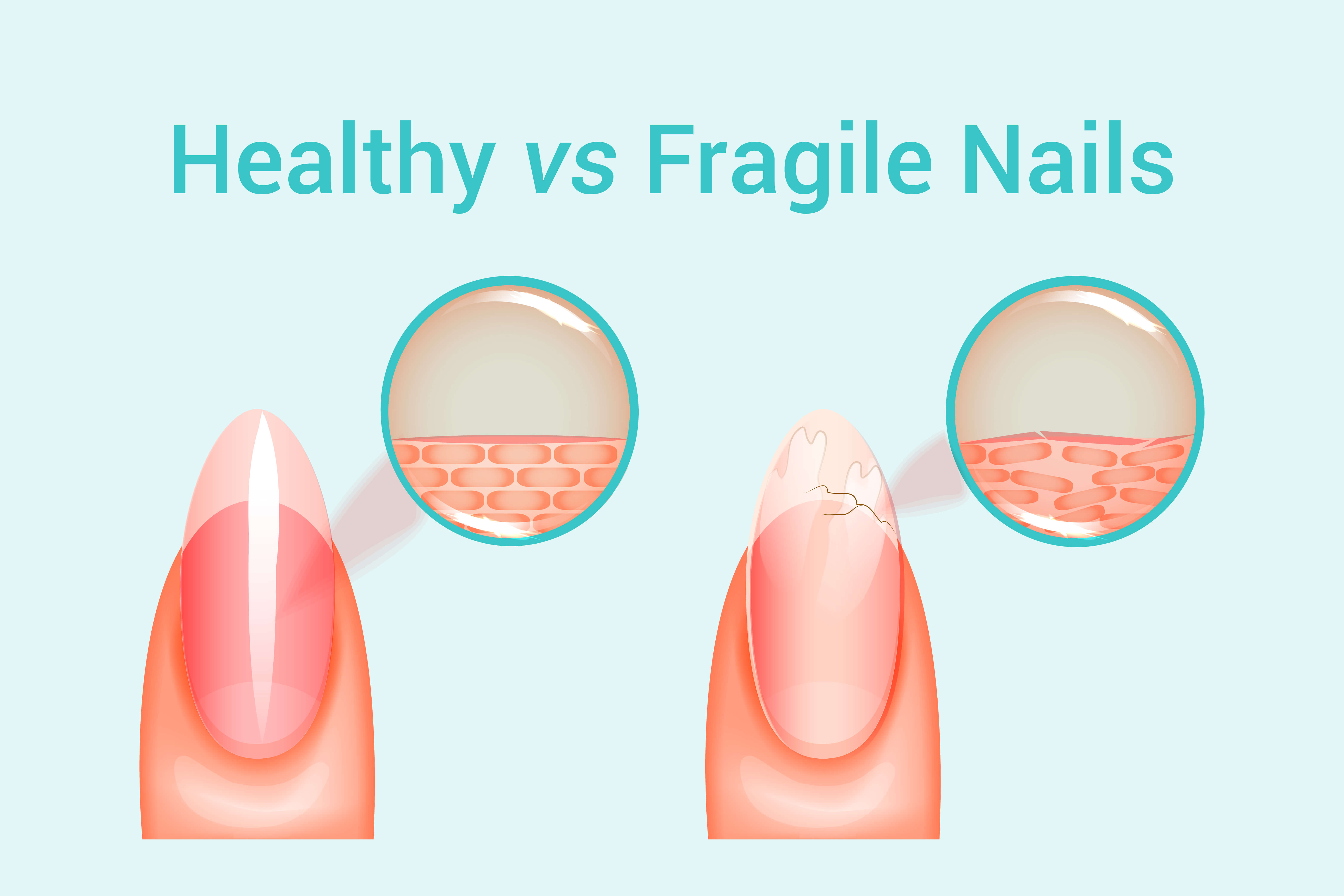 Illustration of healthy versus fragile nail