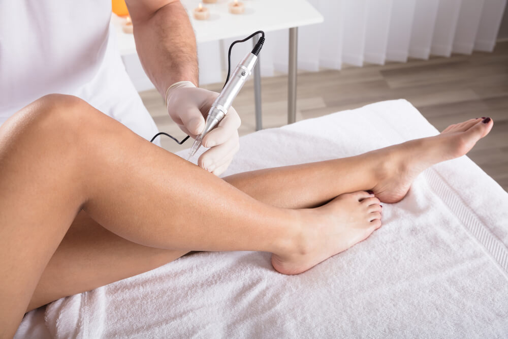 Microneedling on legs